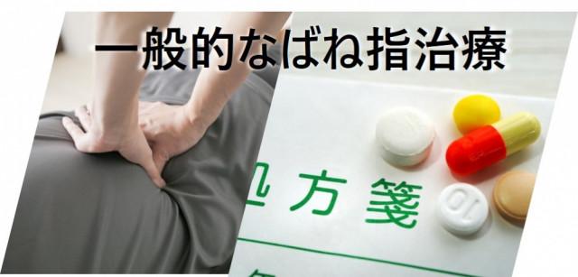 一般的なばね指治療